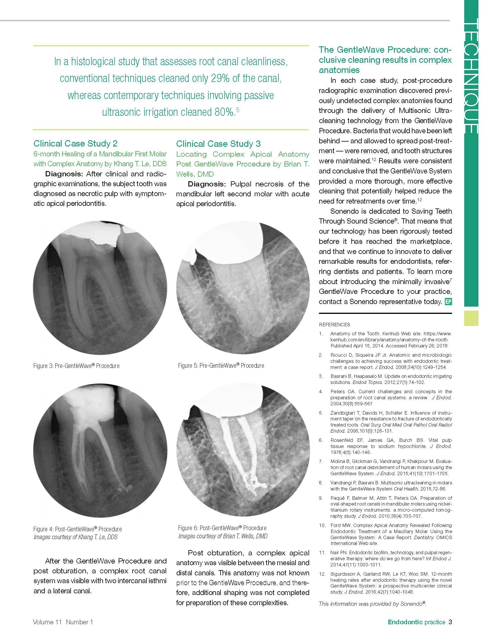 Effectively Treating the Complex Anatomies of Root Canal Systems