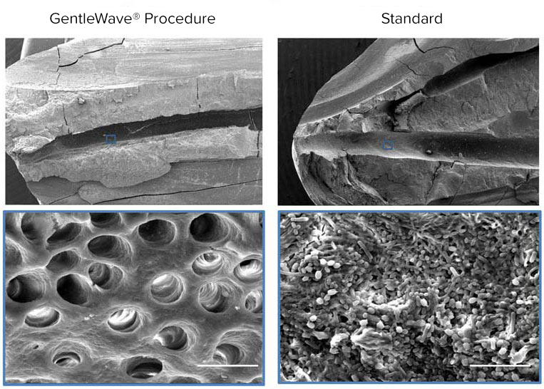 Evaluation of Disinfection Using the GentleWave® System in Molars