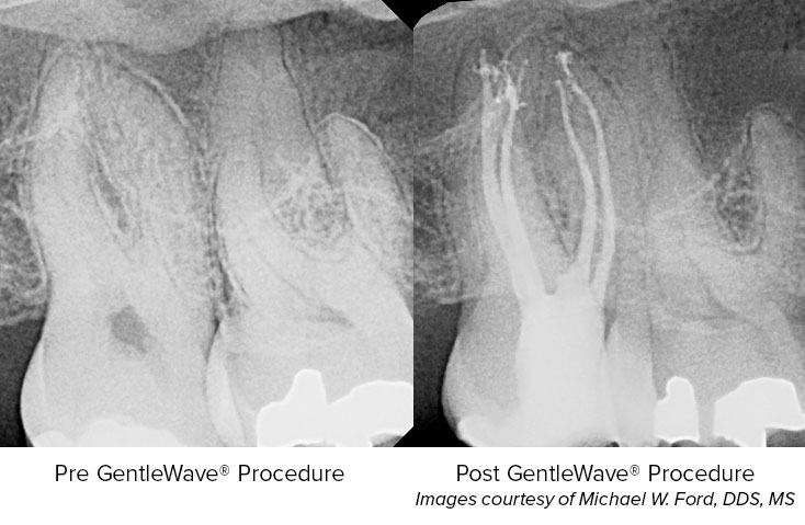 Complex Apical Anatomy Discovered Following Minimal Endodontics