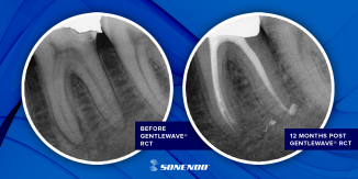 Prospective Multicenter Study Shows Remarkable Healing Rates with Sonendo's GentleWave® System